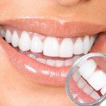 المحافظة على مينا الأسنان قوية ومتينة