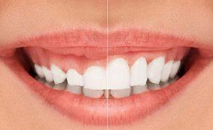 علاج الابتسامة الغائرة