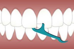 تنظيف الأسنان بالخيط