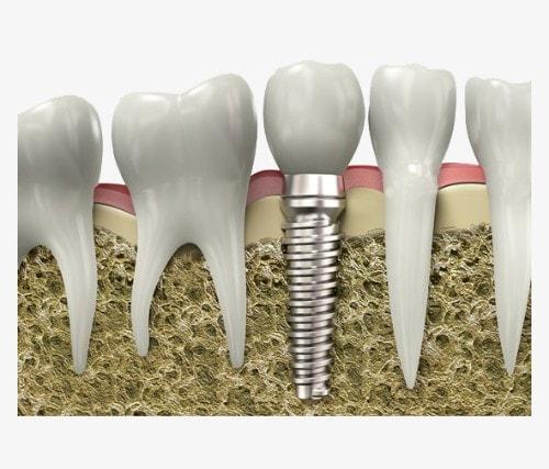 غرسة زراعة أسنان