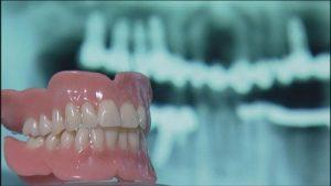 اعراض فشل زراعة الاسنان
