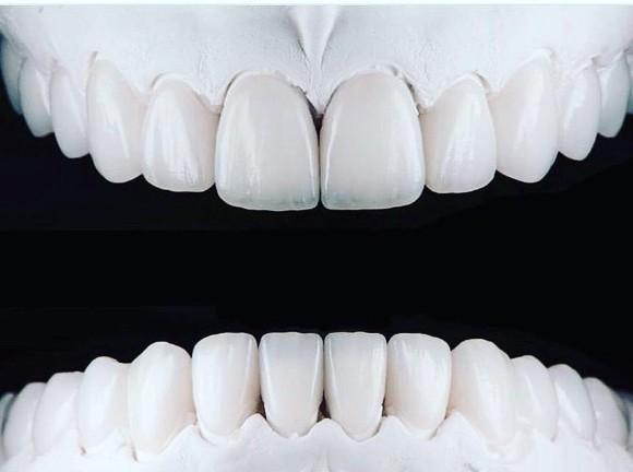 تلبيس الاسنان