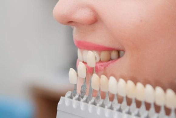 استعمال الزيركون في تلبيسات الأسنان