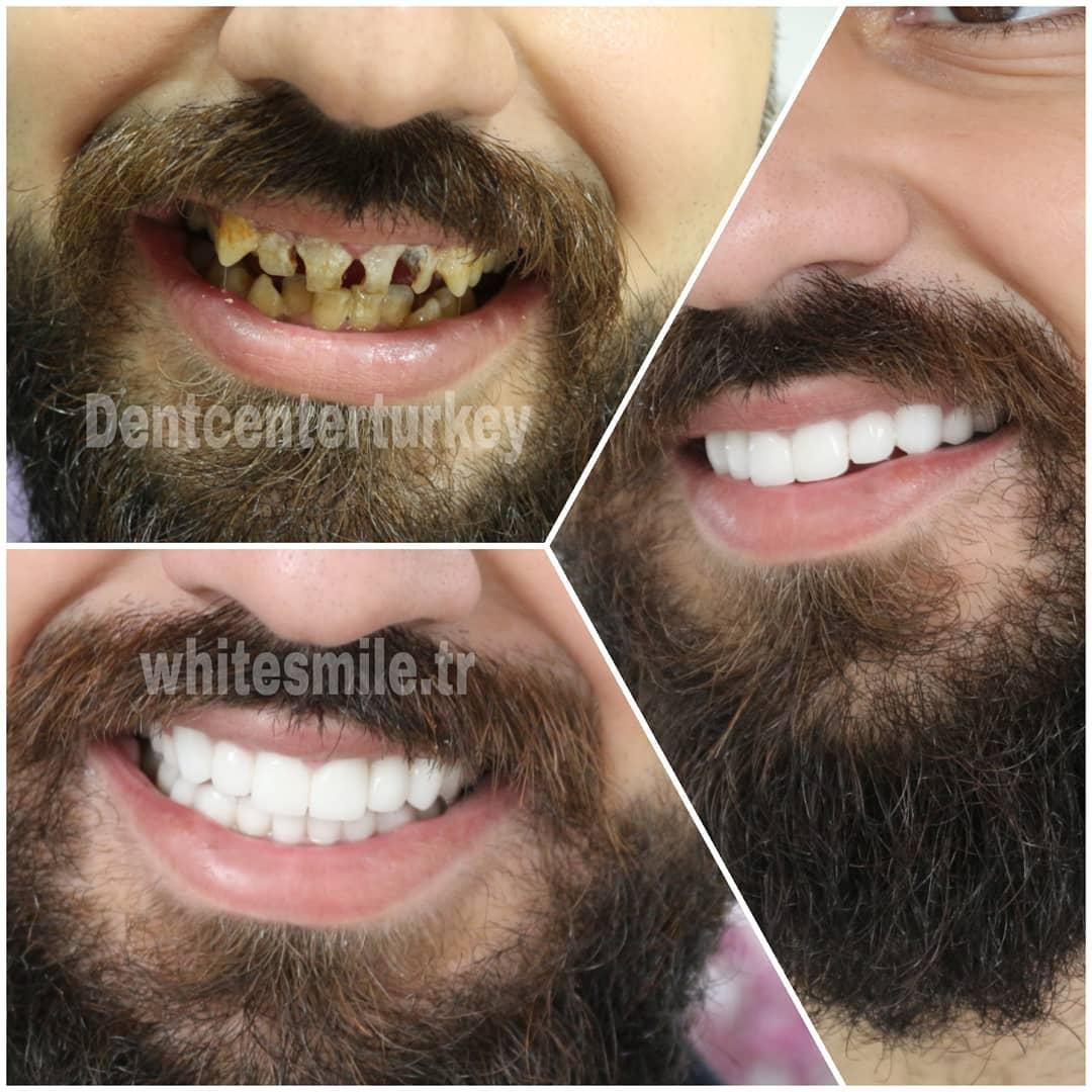 نتيجة ابتسامة هوليود في تركيا