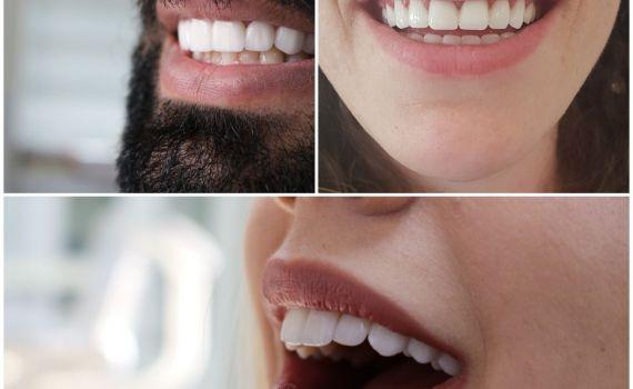 صور لنتائج ابتسامة هوليود في تركيا نفذت في عيادتنا